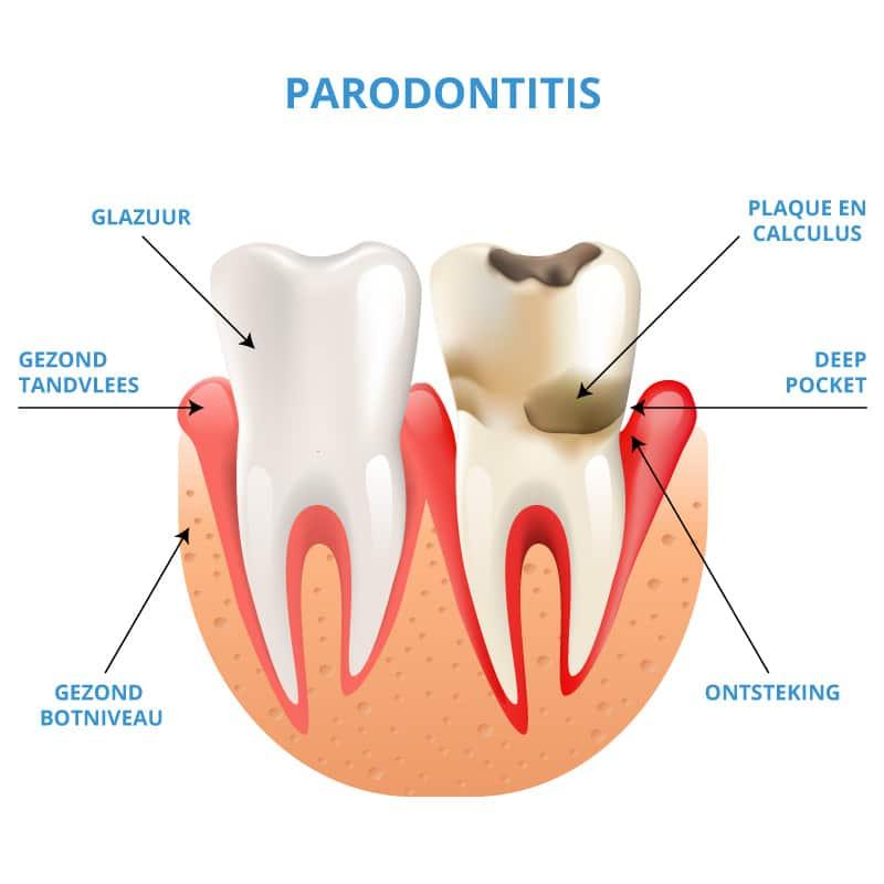 Uitleg Parodontitis | Gebitszorg